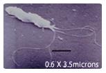 つぴろ 投資 胃がん ピロリ菌 キット 健康